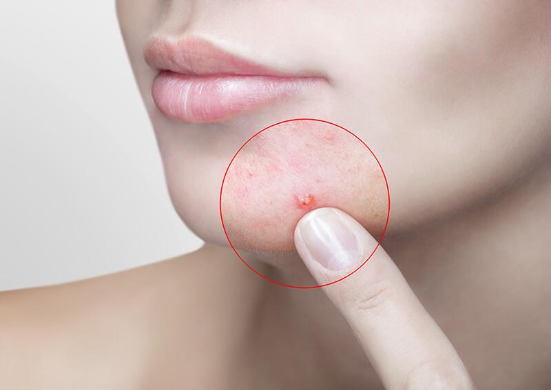 Expert Tips: Dealing with Adult Acne