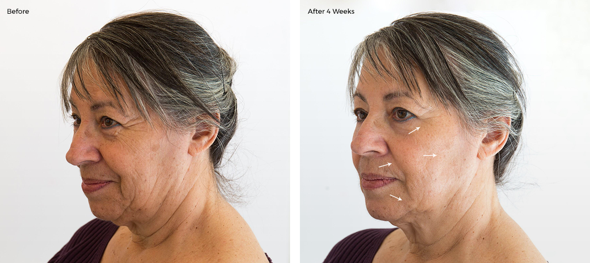 senior woman face before and after 4 weeks of the collagen booster cosmetic treatment: reduced wrinkles and tighter skin