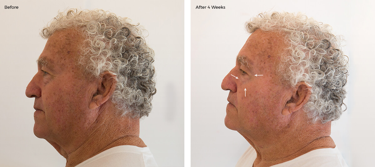 face of an elderly man wrinkles before and after collagen treatment