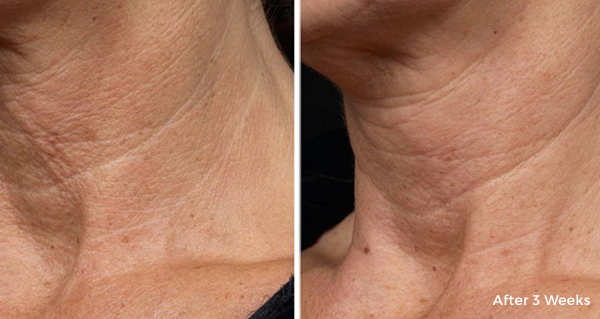 mature woman before and after 3 weeks collagen treatment, closeup on decreased neck lines