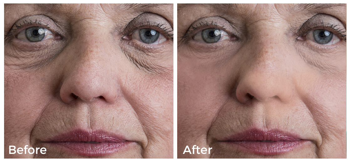 wrinkles around eye before and after collagen treatment