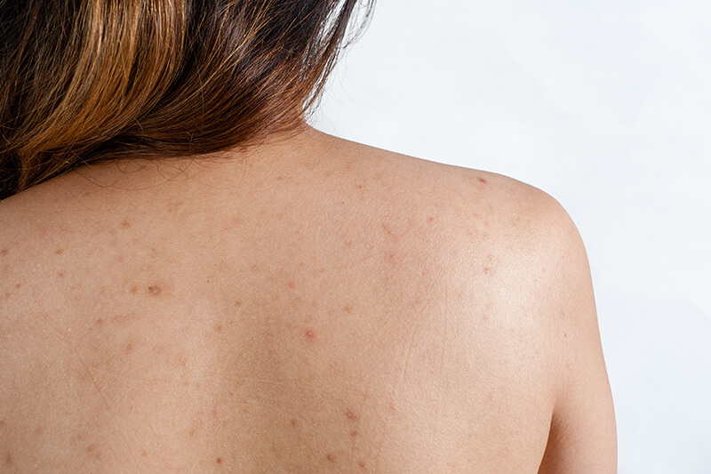 acne scar on a woman's back