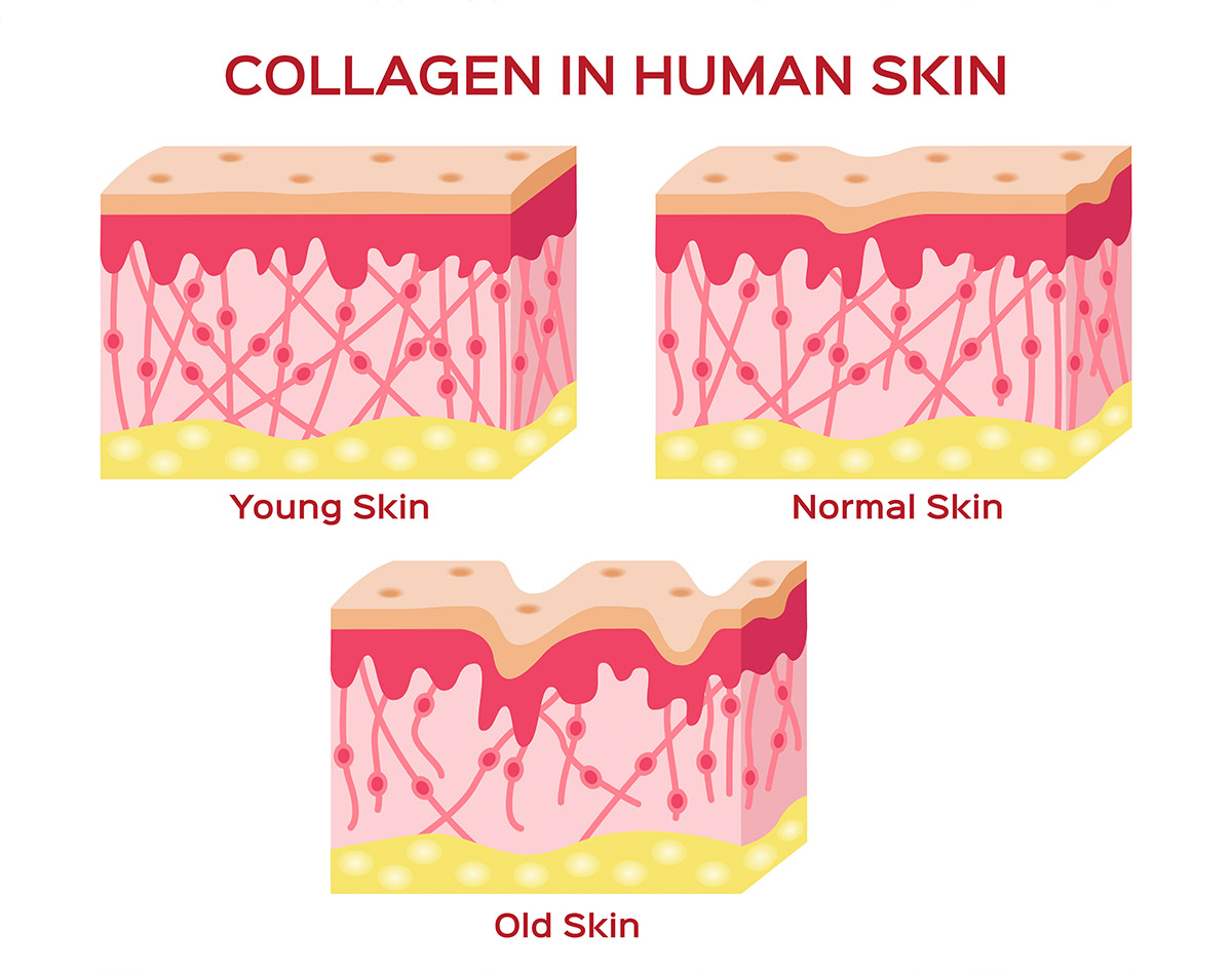 collagen levels on young, normal, and old skin