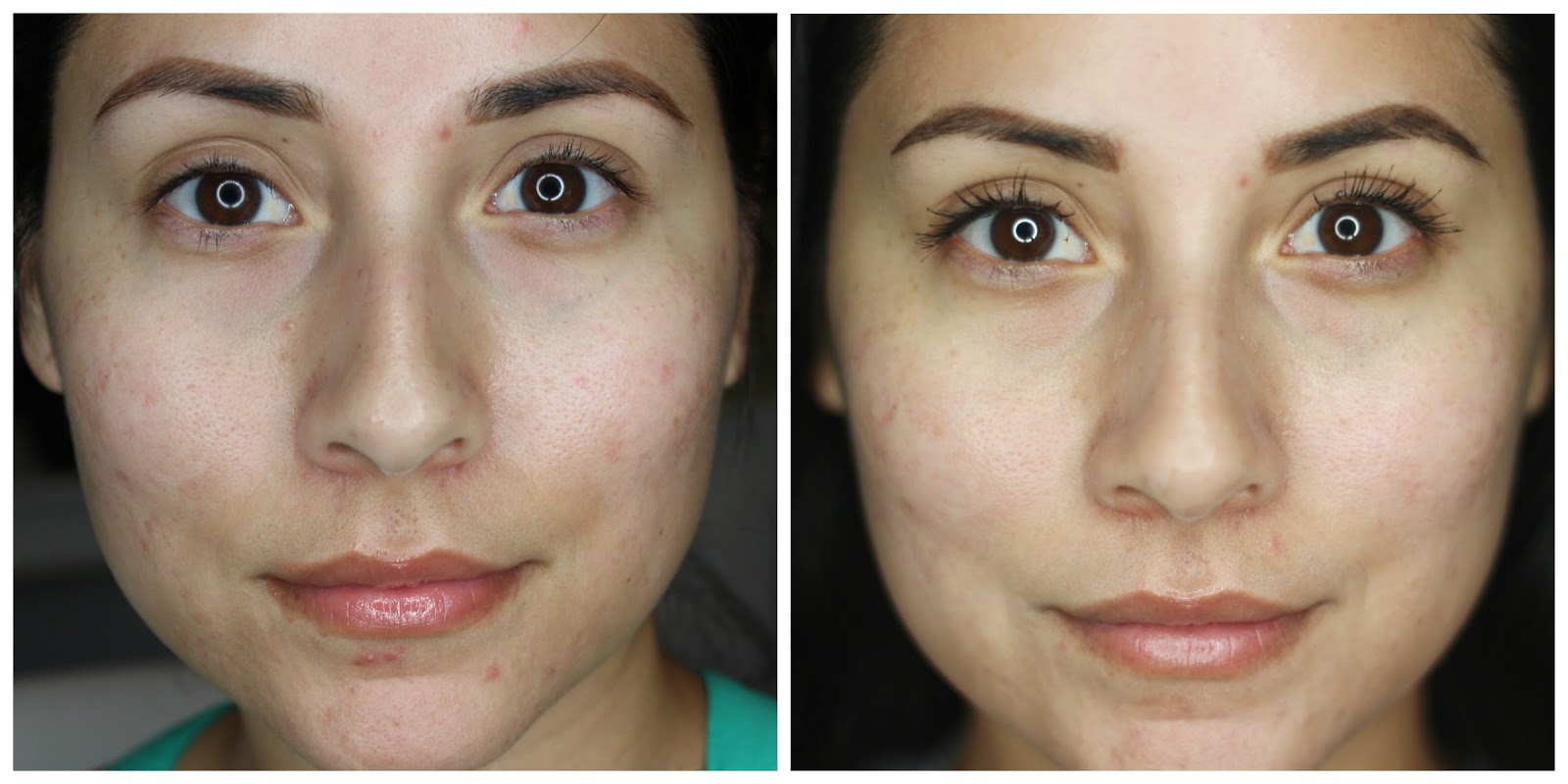 before and after pictures showing the decrease in skin breakouts