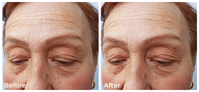 mature woman before and after collagen treatment, closeup