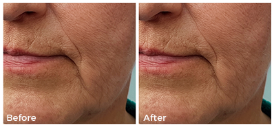 mature woman before and after collagen treatment, closeup on the nose to mouth reduced line