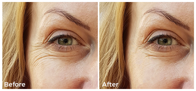mature woman before and after collagen treatment, closeup on decreased eye wrinkles