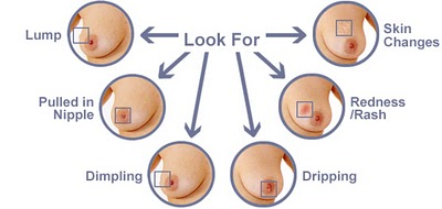 what to look for on breast self-examination