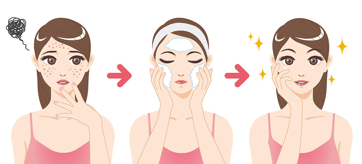 cartoon illustration: acne treatment before & after a facial cleansing foam